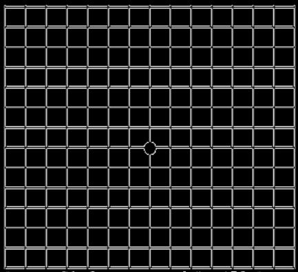 If any area of the grid looks wavy, blurred or dark, note if it is the left or right eye, circle areas that are distorted or missing lines, and contact our office immediately.
